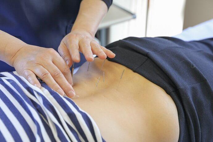 ワンヤ接骨院・鍼灸院の鍼の様子